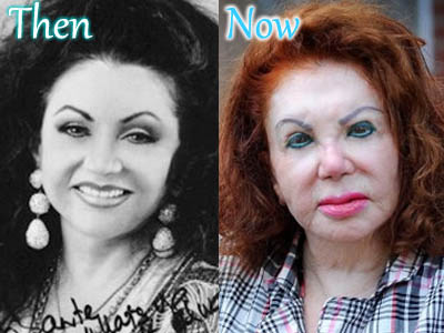 Jackie Stallone Plastic Surgery Photo