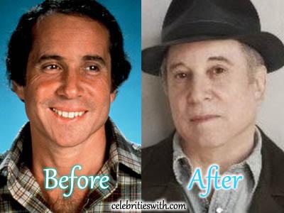 Paul Simon Plastic Surgery