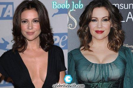 Alyssa Milano Breasts Implant