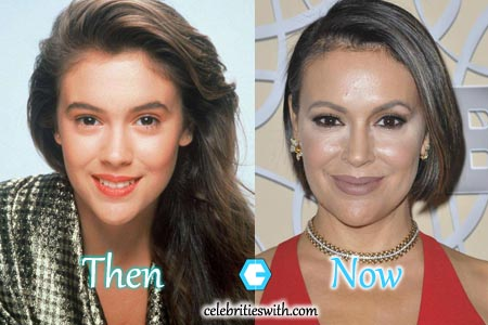 alyssa milano breast enhancement