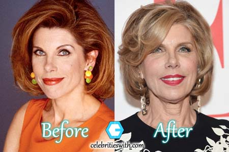 Christine Baranski Plastc Surgery Facelift