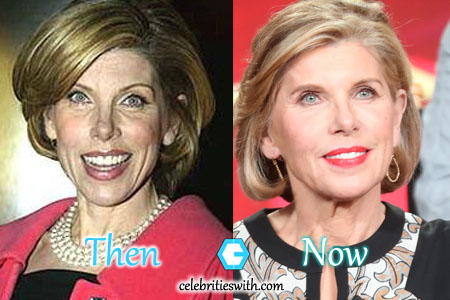 Christine Baranski Facelift