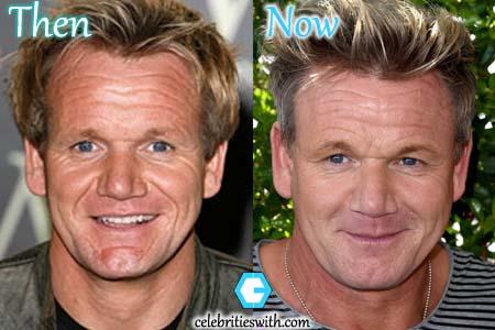 Gordon Ramsay Plastic Surgery Botox