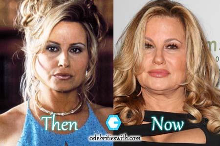 Jennifer Coolidge Facelift, Fillers Photo