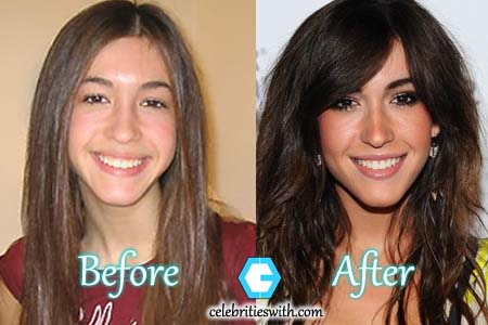 Kate Voegele Plastic Surgery