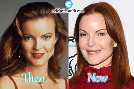 Marcia Cross Botox