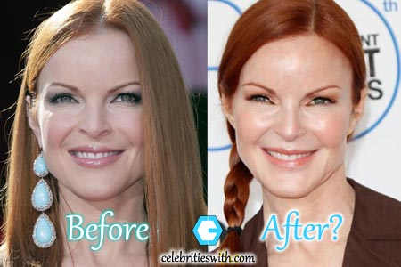 Marcia Cross Plastic Surgery