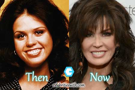 Marie Osmond Facelift, Nose Job