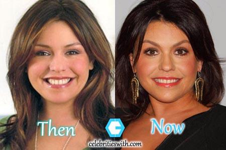 Rachael Ray Botox