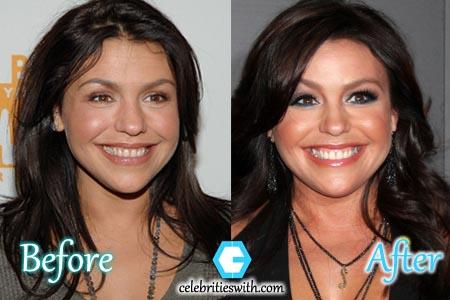 Rachael Ray Plastic Surgery