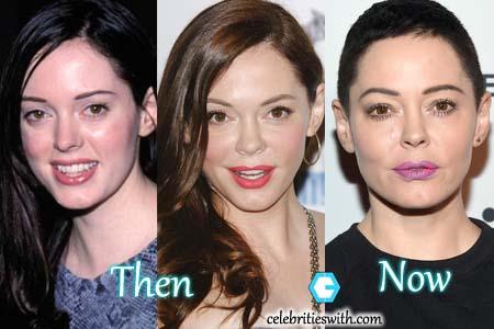 Rose McGowan Plastic Surgery Facelift