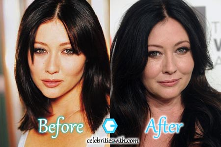 Shannen Doherty Plastic Surgery Picture