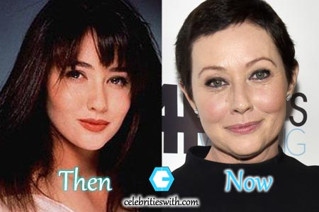 Shannen Doherty Fillers Photo