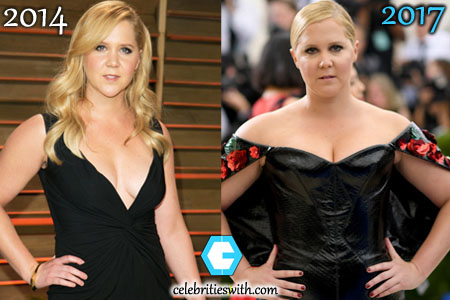 Amy Schumer Weight Gain Picture