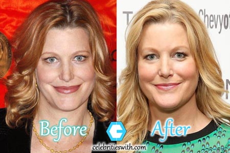 Anna Gunn Nose Job