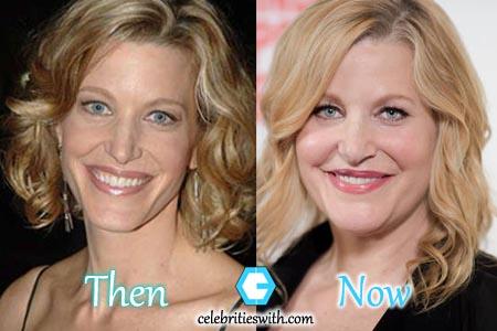 Anna Gunn Plastic Surgery