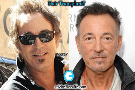 Bruce Springsteen Hair Transplant