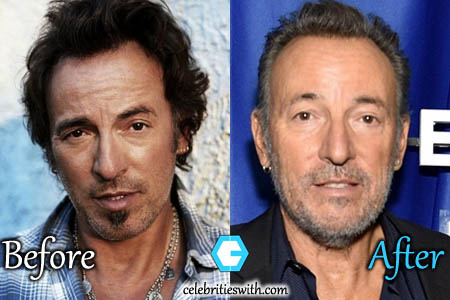Bruce Springsteen Plastic Surgery