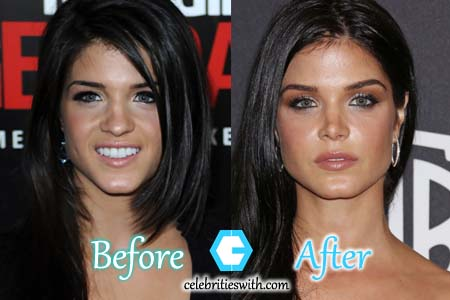 Marie Avgeropoulos Plastic Surgery