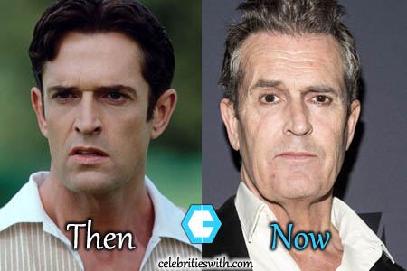 Rupert Everett Plastic Surgery, Facelift