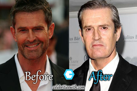 Rupert Everett Plastic Surgery