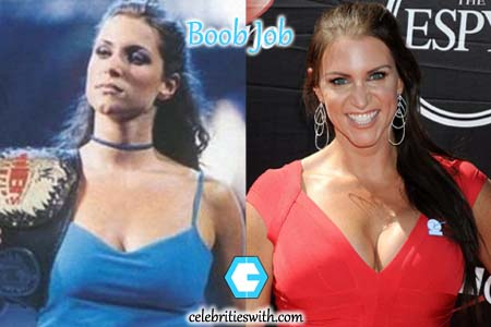 Stephanie Mcmahon Boob Job Photo