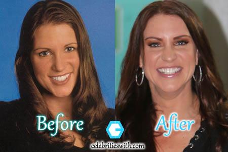 Stephanie Mcmahon Plastic Surgery