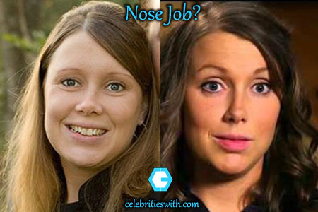 Anna Duggar Nose Job