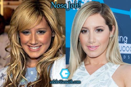 Ashley Tisdale Nose Job
