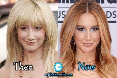 Ashley Tisdale Plastic Surgery