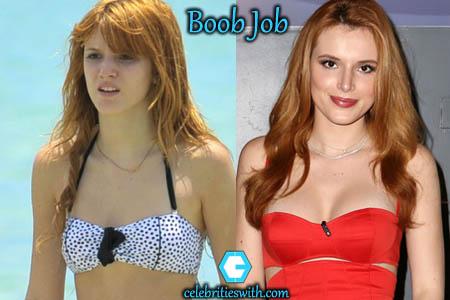 Bella Thorne Boob Job