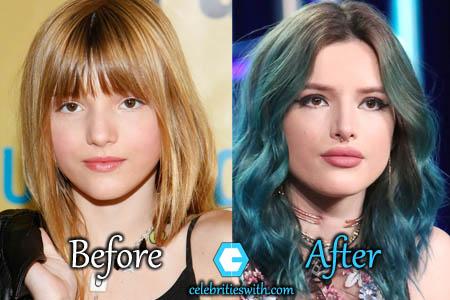 Bella Thorne Plastic Surgery, Lips Filler
