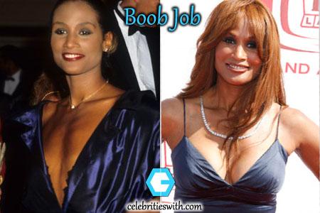 Beverly Johnson Plastic Surgery, Boob Job