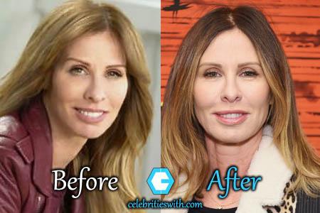 Carole Radziwill Plastic Surgery Facelift Eyelift