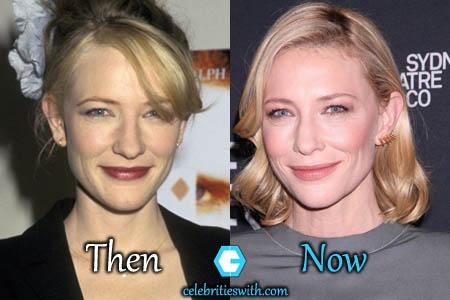 Cate Blanchett Facelift