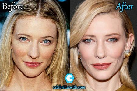Cate Blanchett Plastic Surgery
