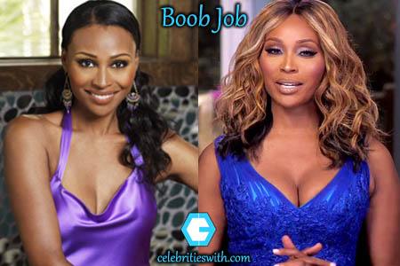 Cynthia Bailey Boob Job
