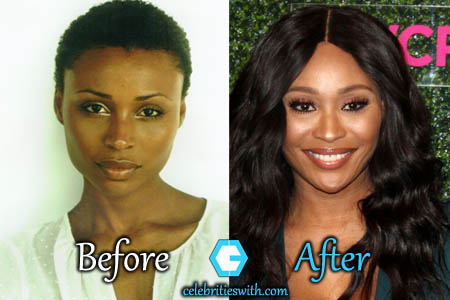 Cynthia Bailey Plastic Surgery