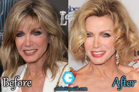 Donna Mills Facelift