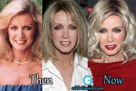 Donna Mills Plastic Surgery