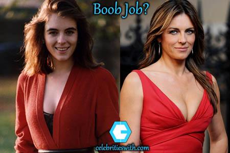 Elizabeth Hurley Boob Job