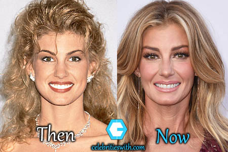 Faith Hill Plastic Surgery, Facelift