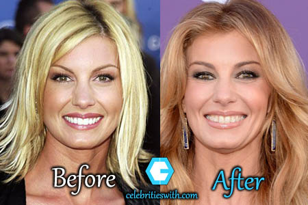Faith Hill Plastic Surgery