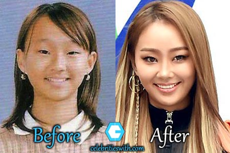 Hyorin Plastic Surgery, Eyelid