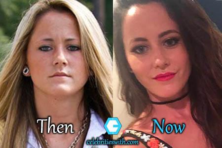 Jenelle Evans Plastic Surgery