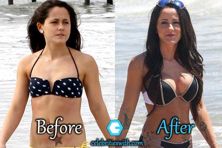 Jenelle Plastic Surgery