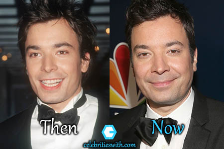 Jimmy Fallon Plastic Surgery Picture