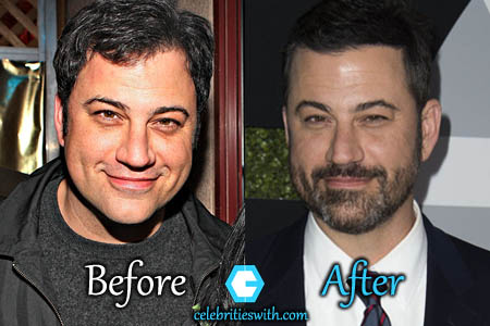 Jimmy Kimmel Plastic Surgery