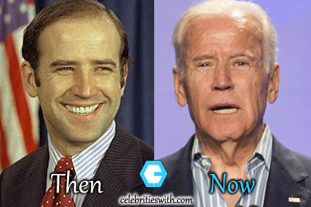 Joe Biden Plastic Surgery, Facelift