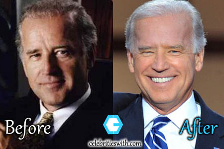Joe Biden Plastic Surgery